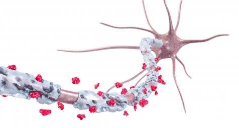 Multiple Sklerose: Monoxyten kommen bei der Therapie in den Fokus