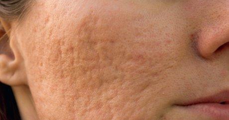 Dermatose