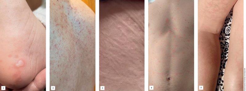 Fünf klinische Muster von Hauterkrankungen bei COVID-19- Patienten: 1: Pseudo-Frostbeulen; 2: vesikuläre Eruptionen; 3: Quaddeln; 4: makulopapuläre Eruptionen; 5: Livedo. Fotos: Academia Española de Dermatología y Venereología (AEDV)