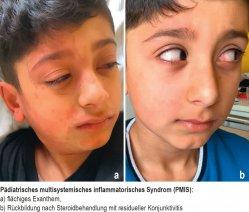 Pädiatrisches multisystemisches inflammatorisches Syndrom (PMIS): a) flächiges Exanthem, b) Rückbildung nach Steroidbehandlung mit residueller Konjunktivitis