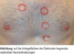 Auf die Anliegeflächen der Elektroden begrenzte vesikulöse Hautveränderungen