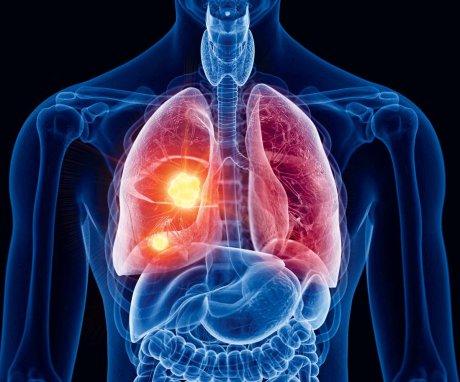 Lungentumoren