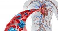 Studie: COVID-19 erhöht Risiko auf Herzinfarkt und Schlaganfall