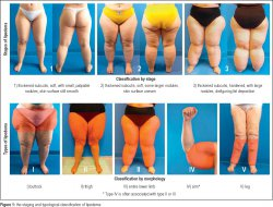 The staging and typological classification of lipedema