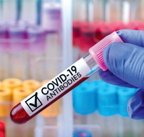 Immunitätsbescheinigungen
