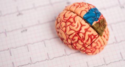 Vorhofflimmern: Katheterablation senkt Demenzrisiko