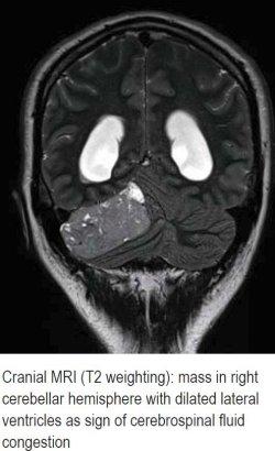 Cranial MRI (T2 weighting)