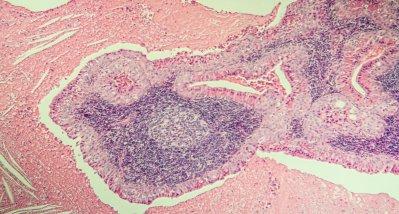 COVID-19-Infektionen bei Lymphom-Patienten: Häufiger persistierende Symptomlast