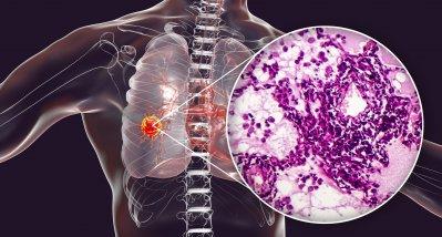 Adjuvante Therapie des NSCLC durch Checkpoint-Inhibitor verbessert