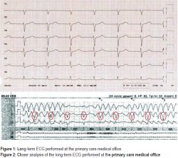 Figure 1: Long-term ECG performed at the primary care medical office; Figure 2: Closer analysis of the long-term ECG performed at the primary care medical office