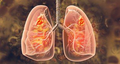 NSCLC: Checkpoint-Inhibition mit Chemotherapie wirksamer als alleine