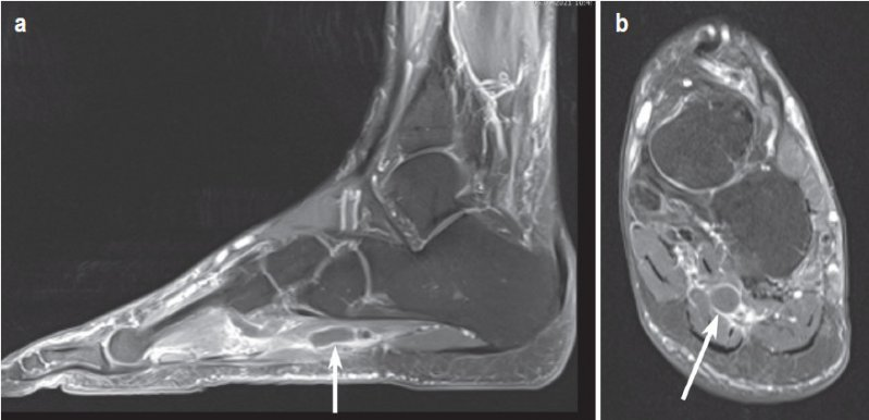 Bilateral Plantar Phlebothrombosis After AstraZeneca Vaccination