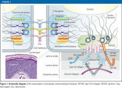 Schematic diagram of the autoantigens in pemphigus and pemphigoid diseases