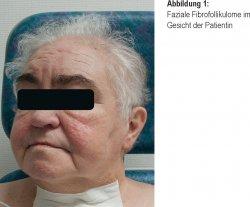 Faziale Fibrofollikulome im Gesicht der Patientin