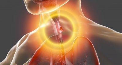 Barrett-Ösophagus: Alle Adenokarzinome der Speiseröhre entstehen aus Magenzellen