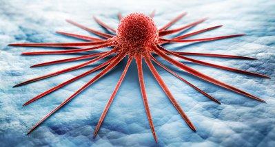 Krebs in Europa: Zahl der Neudiagnosen wird bis 2040 auf 3,4 Millionen ansteigen