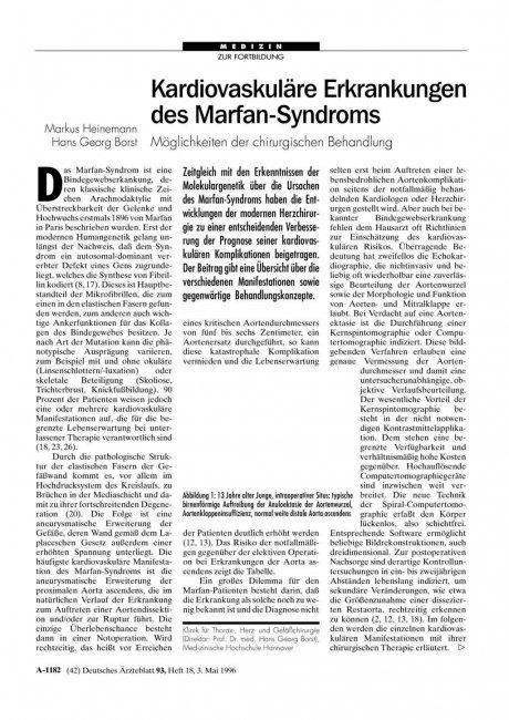 Kardiovaskuläre Erkrankungen des Marfan-Syndroms: Möglichkeiten der chirurgischen Behandlung