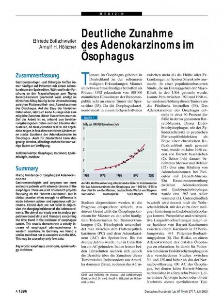 Deutliche Zunahme des Adenokarzinoms im Ösophagus