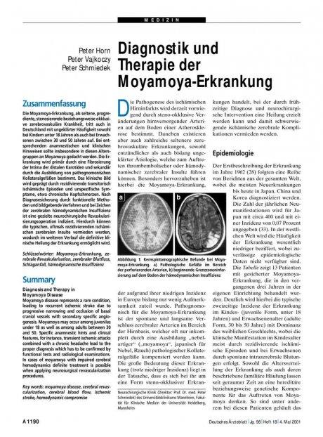 Diagnostik und Therapie der Moyamoya-Erkrankung