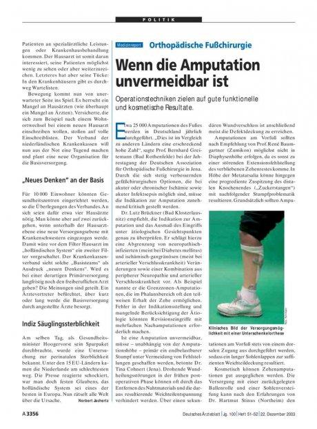 Orthopädische Fußchirurgie: Wenn die Amputation unvermeidbar ist