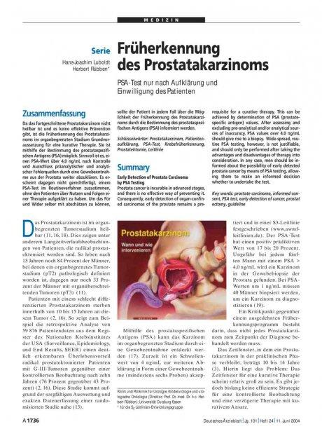 Früherkennung des Prostatakarzinoms: PSA-Test nur nach Aufklärung und Einwilligung des Patienten