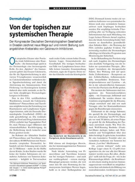 Dermatologie: Von der topischen zur systemischen Therapie