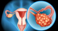 Rezidiviertes Ovarialkarzinom: Erneute Erhaltungstherapie mit PARP-Inhibitor wirkt Progress entgegen