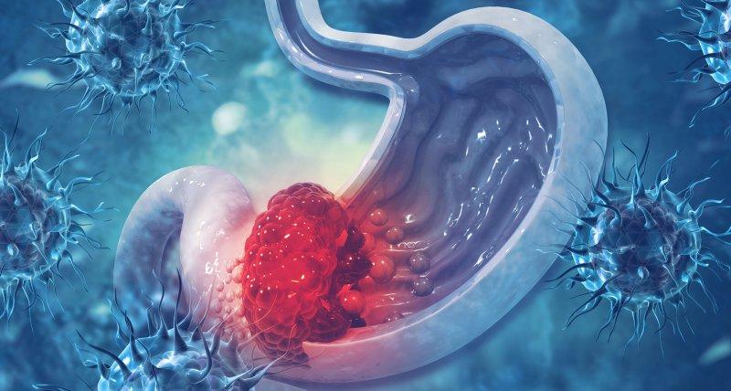 Immun-Chemotherapie-Kombination beim Magenkarzinom: Ein großer Schritt vorwärts