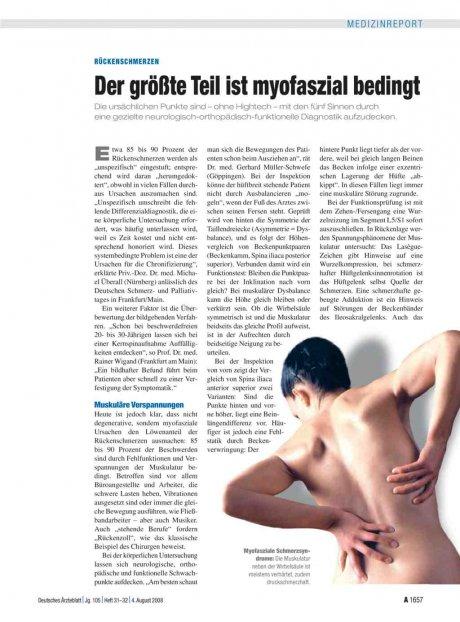 Rückenschmerzen: Der größte Teil ist myofaszial bedingt
