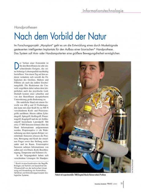 Handprothesen: Nach dem Vorbild der Natur