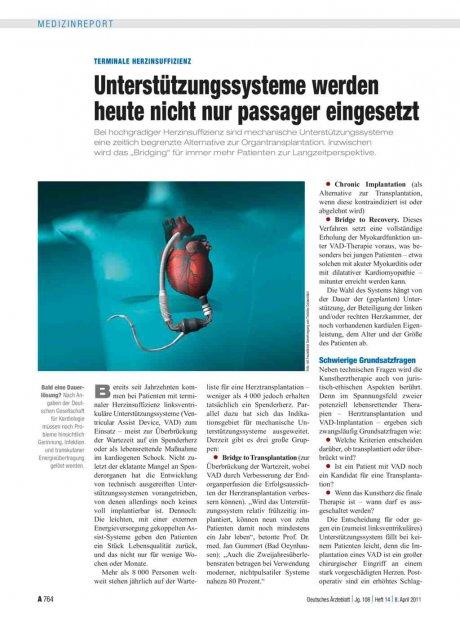Terminale Herzinsuffizienz: Unterstützungssysteme werden heute nicht nur passager eingesetzt