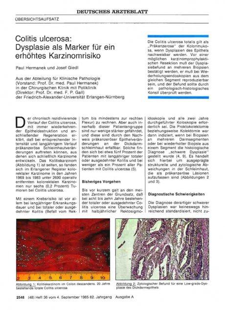Colitis ulcerosa: Dysplasie als Marker für ein erhöhtes Karzinomrisiko