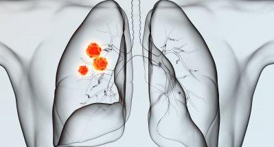 Inoperables NSCLC Stadium III: Konzept der konsolidierenden Immuntherapie bestätigt