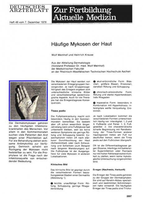 Häufige Mykosen der Haut