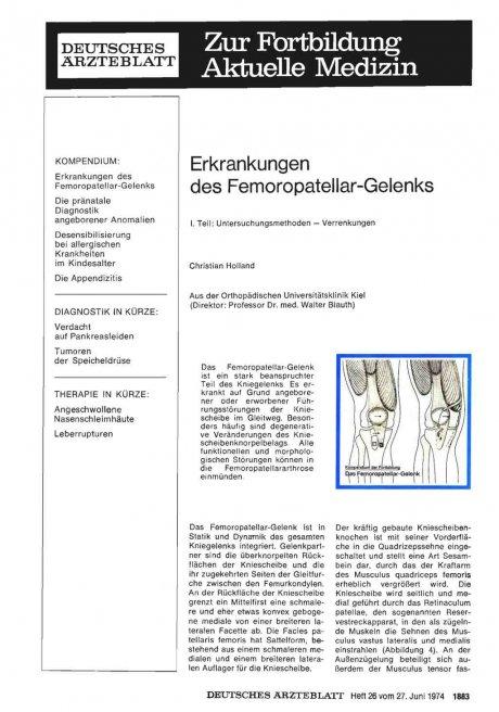 Erkrankungen des Femoropatellar-Gelenks
