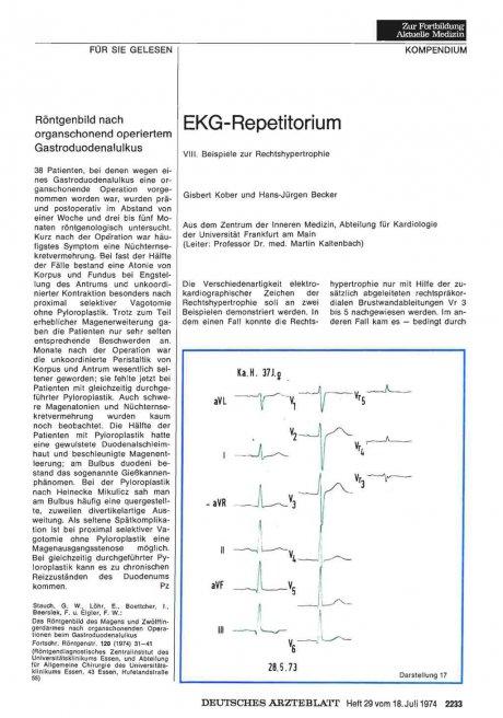 EKG-Repetitorium: VIII. Beispiele zur Rechtshypertrophie
