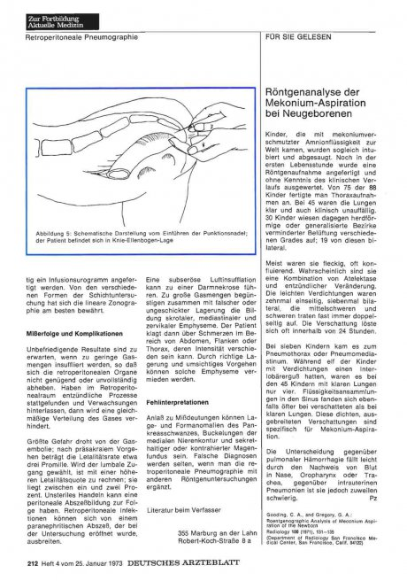 Röntgenanalyse der Mekonium-Aspiration bei Neugeborenen