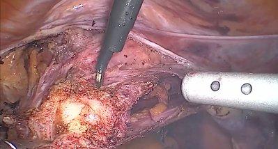 Prolapsoperation: Urogenitalorgane lassen sich ohne künstliche Netze fixieren