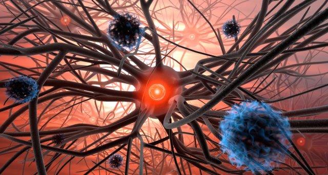 SARS-CoV-2: Neurologische Komplikationen nach Infektion häufiger als nach der Impfung