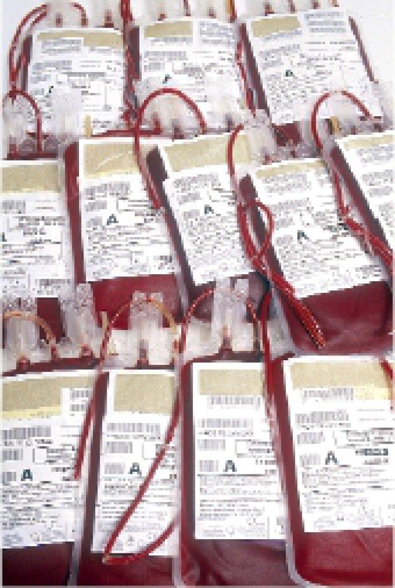 Blutspenden: Der Arzt muss Rückverfolgungsverfahren unterstützen. Foto: Peter Wirtz