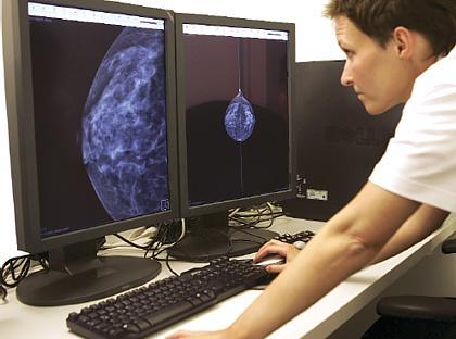 mammographie screening rechtsfragen weitgehend ungekl rt. Black Bedroom Furniture Sets. Home Design Ideas