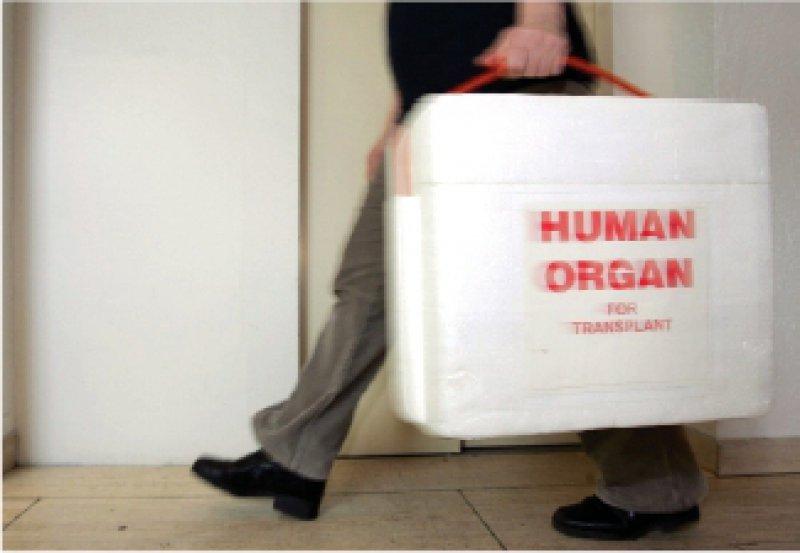 Nicht wenige Organspenden scheitern, weil der Hirntod nicht schnell genug festgestellt wird – unnötigerweise, wie Kritiker sagen. Foto: dpa