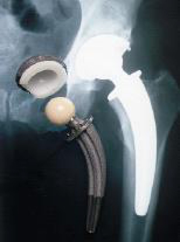 Knochensubstanzerhaltende, zementfrei verankerte Titanendoprothese Typ CFP Link; links Originalprothese, rechts Ansicht im Röntgenbild Foto: ENDO-Klinik