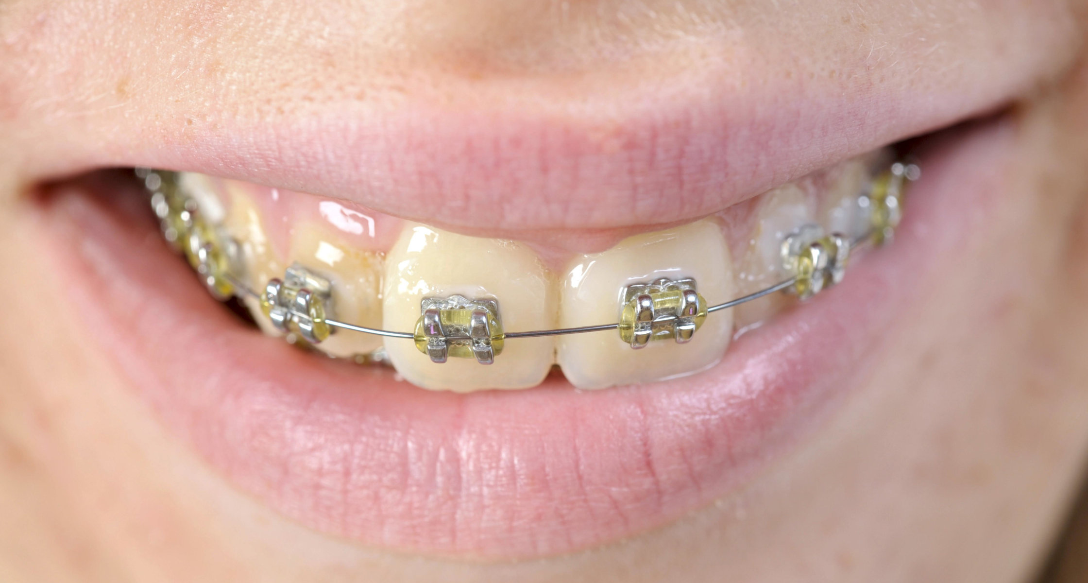 Aus mit zahnspange wie sehe ich Zahnspange: Das