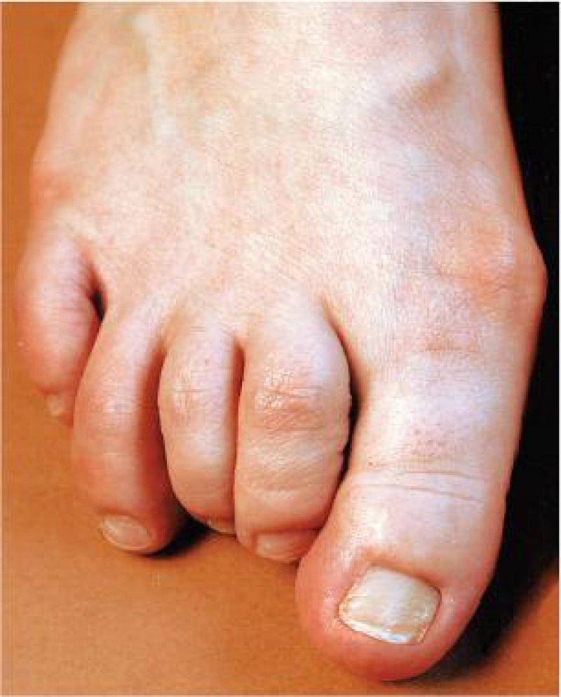 Rheumatoide Arthritis: Frühe Diagnostik und Therapie kann starke Deformierungen der Gelenke aufhalten. Foto: Abbott