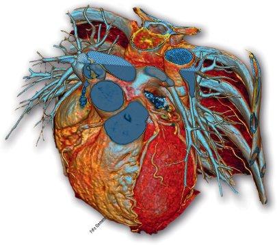 Angiographie des Herzens schreiben
