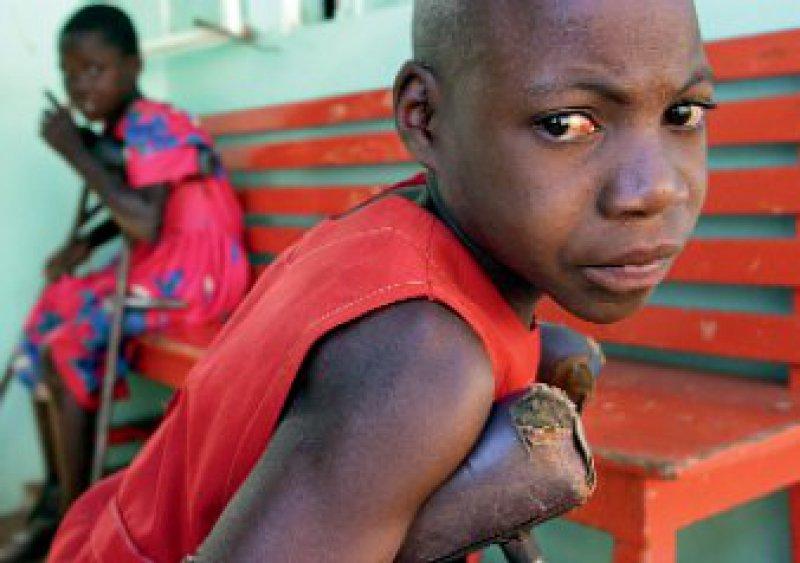 Eine Infektion mit Polioviren kann zu bleibenden Lähmungen führen. Foto: Caro