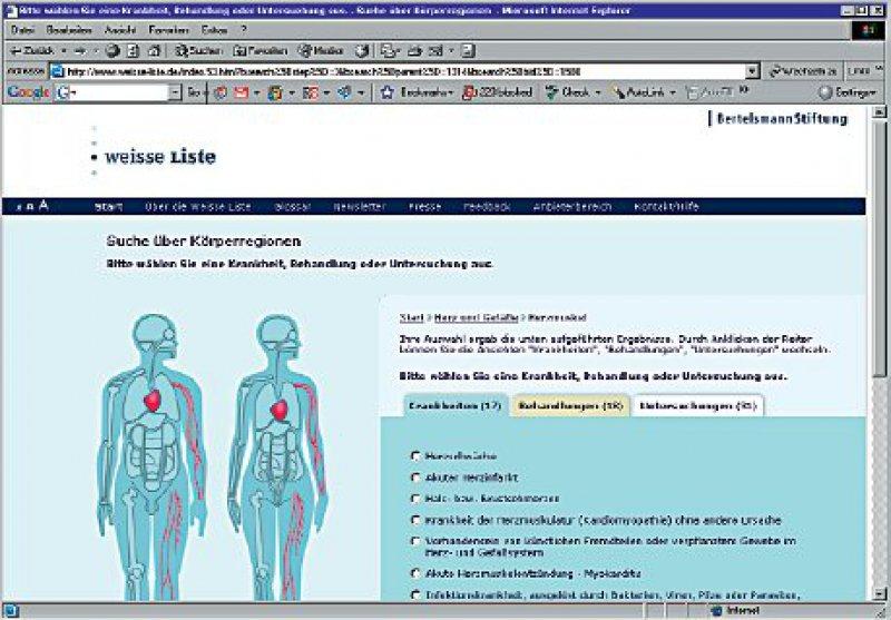 Die Körpernavigation: Rechts öffnen sich Auswahlmenüs, um die Suche einzugrenzen.