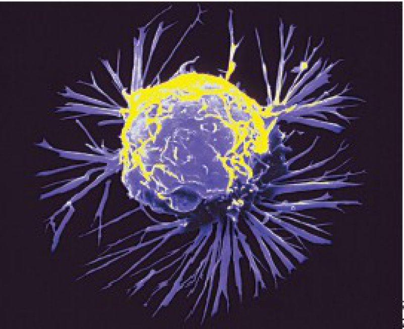 Mesenchymale Stammzellen werden von wachsenden Tumoren angelockt. Diesen Umstand versuchen Grundlagenforscher therapeutisch zu nutzen. Foto: Science