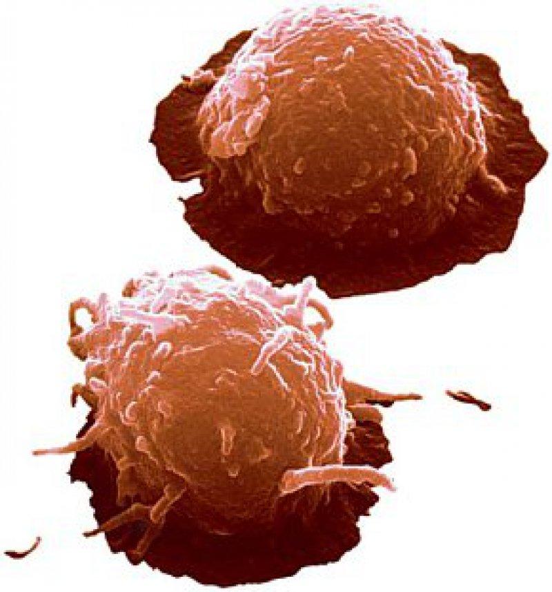 Stammzellen aus Nabelschnurblut. Abbildung: Jürgen Berger/SPL/Agentur Focus